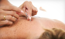 One or Two Acupuncture Sessions with One 15-Minute Consultation at WonderPoint Wellness Centre (Up to 59% Off)