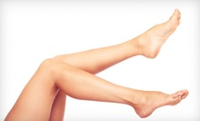 Two or Four Sclerotherapy Spider-Vein Treatments at Hollywood Dermatology & Cosmetic Surgery Specialists (Up to 78% Off)