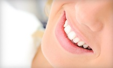 One-Year Dental-Coverage Plan or One iSmile X-Treme Whitening Treatment at iSmile Dentistry (Up to 92% Off)