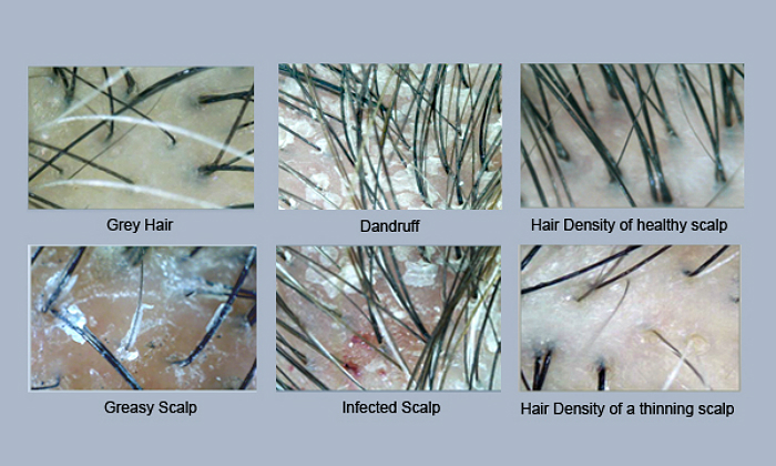 Hair Scalp Sebum Sebaceous Glands | Male Models Picture