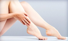 Laser Hair-Removal Treatments on a Small, Medium, Large, or Extra-Large Area at Body del Sol Medical Spa (Up to 88% Off)