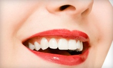 Exam and Cleaning Package, In-Office Teeth Whitening, or Both at Lotus Dental Spa (Up to 82% Off)