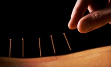 One or Three Acupuncture Treatments with Consultation at The Center for Wellness & Rehabilitation (Up to 75% Off)