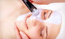 One, Three, or Six Microdermabrasion Treatments from Danielle Johns at Alexander Grace Hair Design (Up to 57% Off)