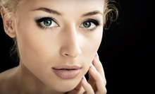 $259 for One Syringe of Restylane at Total Med Solutions, LLC ($550 Value)