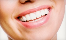 Dental-Implant Package for One or Two Teeth with Exam and X-rays at Apple Dental (Up to 64% Off)