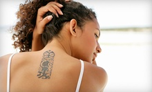 Three Laser Tattoo-Removal Sessions for Up to 3, 6, or 10 Square Inches at Dermatology Realm (Up to 75% Off)