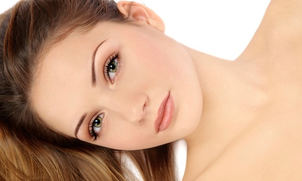 One or Three Microdermabrasion Treatments at LCI Lasercom Clinics (Up to 67% Off)