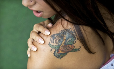 One, Two or Three Tattoo-Removal Treatments at Tribeca Medaesthetics (Up to 78% Off)