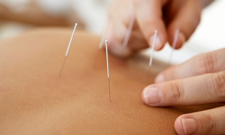 Initial Examination and One or Three Acupuncture Sessions at Golden Road Acupuncture & Oriental Medicine (Up to 58% Off)