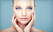 One, Two, or Four Chemical Peels at Yuva Laser &amp; Skin Care (Up to 74% Off)