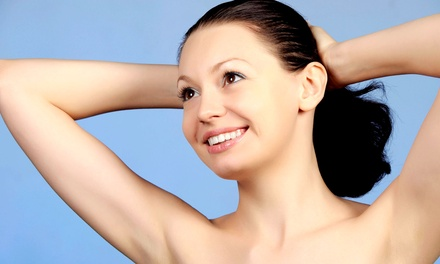 Laser Hair-Removal on a Small, Medium, or Large Area at Spyros Laser MedSpa (Up to 93% Off)