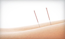 Consultation and Acupuncture with Optional Follow-Ups at Acupuncture Therapy with Stephen C. Nelson (Up to 53% Off)