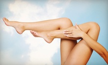 One or Two Laser Vein Treatments for the Face or Leg at Lotus Laser Skin Treatments (Up to 74% Off)