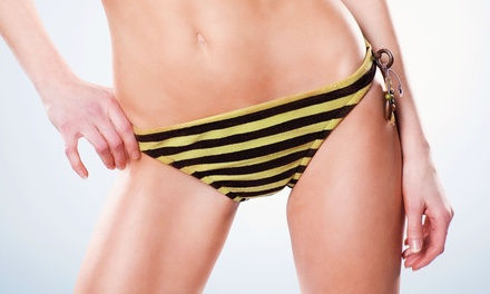 $35 for Two Basic Bikini Sugaring Treatments from Angela Reich at Utopia Bodyworks ($80 Value)