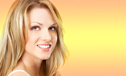 Dental Exam, Cleaning, and X-rays, or Teeth Whitening for Life Package at EnvySmile Dental Spa (Up to 92% Off)
