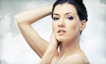 Three or Five Microdermabrasion Treatments for the Face, or Three for the Back at Wake Up, Made Up (Up to 76% Off)