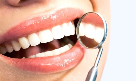 $59forOne Dental Exam, Cleaning, and X-Rays (Up to$385value)
