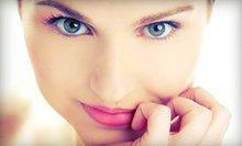 Photo-Rejuvenation Treatment With Optional Vibradermabrasion at Bella MD Laser Vein &amp; Aesthetic Center (75% Off)