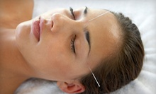 One or Three Acupuncture Sessions at Grubby Halo Community Acupuncture (Up to 58% Off)
