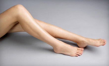 $99 for Two 30-Minute Laser Spider Vein Removal Treatments at Spiegel Spa ($600 Value)