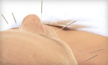 One or Three Acupuncture Sessions at The Colorado Center for Balanced Health and Biofeedback (Up to 60% Off)
