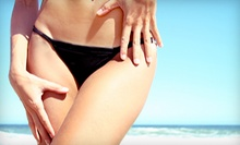 One or Three Brazilian Waxes at Synergy Day Spa (Up to 59% Off)