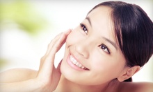 Four, Six, or Eight 30-Minute Microdermabrasion Treatments at Better Health & Wellness Center (Up to 79% Off)