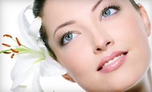 Removal of Three, Five, or Unlimited Skin Irregularities at Rosemary for Remembrance Spa (Up to 67% Off)