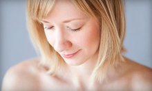 One or Three Chemical Peels at Massage Medic (Up to 60% Off)
