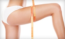 One or Three Endermologie Cellulite-Reduction Treatments at Madeleine Salon & Spa (Up to 67% Off)