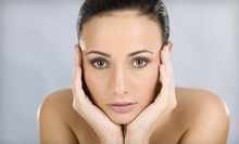 Two or Four eMatrix Noninvasive Face-Lifts at Belle Spas (Up to 73% Off)