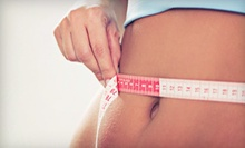 Noninvasive Body Contouring on One or Two Areas from Dr. Robert W. Kessler, MD, FACS (Up to 53% Off)