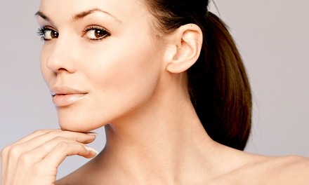 Glycolic Peel or SilkPeel Dermalinfusion Treatment with Optional Hydrating Eye Mask at Spa400 (59% Off)