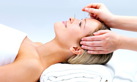 One, Three, or Five 60-Minute Acupuncture Treatments at Ding's Acupuncture, Massage & Herbs (Up to 83% Off)