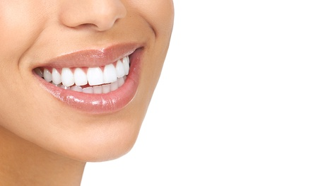 Dental Exam, Cleaning, Digital X-ray, and Fluoride Treatment at Easy Pay Dental ($485 Value)