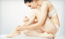 Six Laser Hair-Removal Treatments on a Small, Medium, or Large Area at Bare Elegance MedSpa (Up to 84% Off)