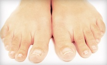 Laser Nail-Fungus Removal on One Toe, One Foot, or Both Feet at Laser Lean (Up to 54% Off)