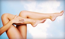 Two or Four Spider-Vein Treatments at Body Focus Medical Spa and Wellness Center (Up to 64% Off)