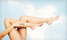 Six Laser Hair-Removal Treatments on Extra-Small, Small, Medium, or Large Area at A Youthful Reflection (Up to 78% Off)