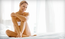 Six Laser Hair-Removal Treatments on a Small, Medium, or Large Area at RedWoods Salon & Spa (Up to 91% Off)
