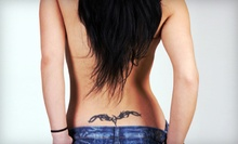 Three Tattoo-Removal Sessions for Area up to 2 or 4 Square Inches at D-Inked (Up to 67% Off)