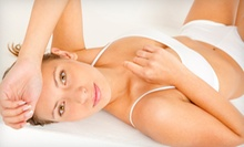 Six Laser Hair-Removal Treatments on a Small, Medium, or Large Area at Lazur La Vie (Up to 91% Off)