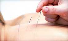 One Standard or Ear Acupuncture Session or Two Facial Acupuncture Sessions at Michigan Acu Clinic (Up to 73% Off)