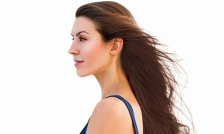 10 or 20 Laser Hair-Restoration Treatments at O Mind Body Skin (Up to 73% Off)