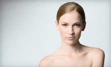 Three or Five Microdermabrasion Treatments at Synthesis Spa (Up to 82% Off)