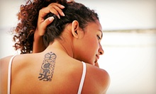 Laser Tattoo Removal at Advanced Laser & Skin Center (Up to 56% Off). Four Options Available.
