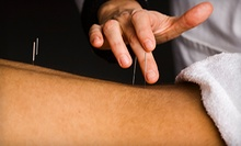 One, Three, or Six Acupuncture Treatments at Whole Health Acupuncture (Up to 77% Off)
