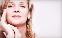 Six Nonsurgical Facelifts or Three Nonsurgical Facelifts with Microdermabrasions at RC Spa (Up to 90% Off)
