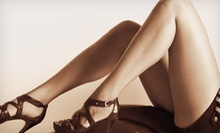 Two, Four, or Six 15-Minute Laser Vein Treatments for the Legs at Skin Studio & Laser Boutique (Up to 83% Off)